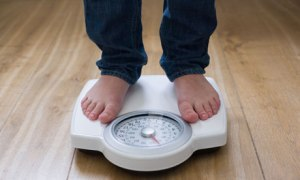 Do you need a weight loss surgery