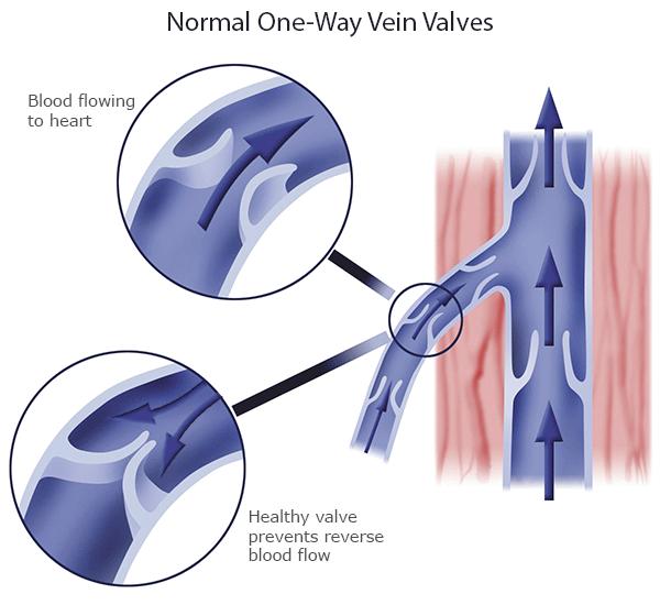normal-valves