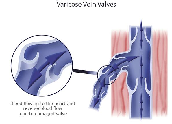 Symptoms- Varicocele
