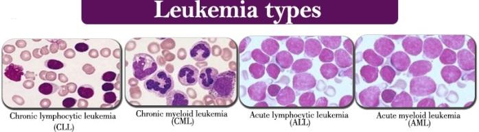 Acute-myeloid-leukemia2
