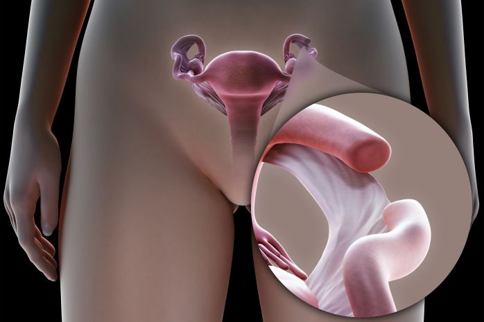 Tubal Ligation Surgery in India3