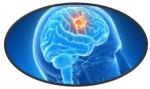brain-tumors