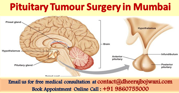 Pituitary Tumour Surgery in Mumbai
