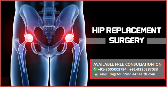 Best Cost for Total Hip Replacement Surgery in India, Hip Arthroplasty low cost surgery in india, Total Hip Replacement Surgery in india affordable cost, Total Hip Replacement Success Rates in India, best hip joint Replacement surgeons in world, Total Hip Replacement Surgery in India low-priced, best Total Hip Replacement specialist in india, top hospitals for Total Hip Replacement Surgery in India,